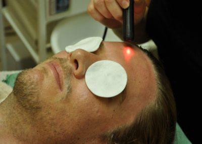 Biostimulační laser ve Studiu Detail Liberec